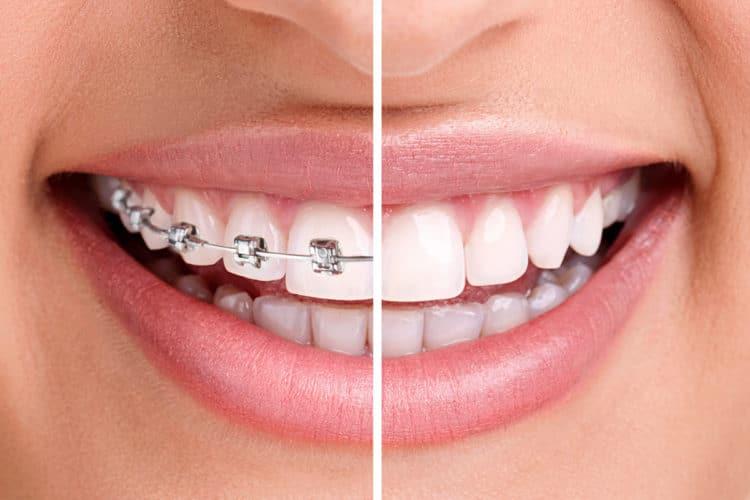 Ortodoncia y Ortopedia 2